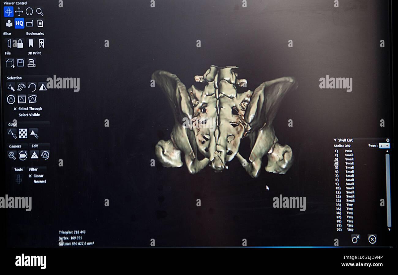 Reconstrucción 3D a partir de una imagen de TC de la pelvis de un paciente para una impresión 3D personalizada. Foto de stock