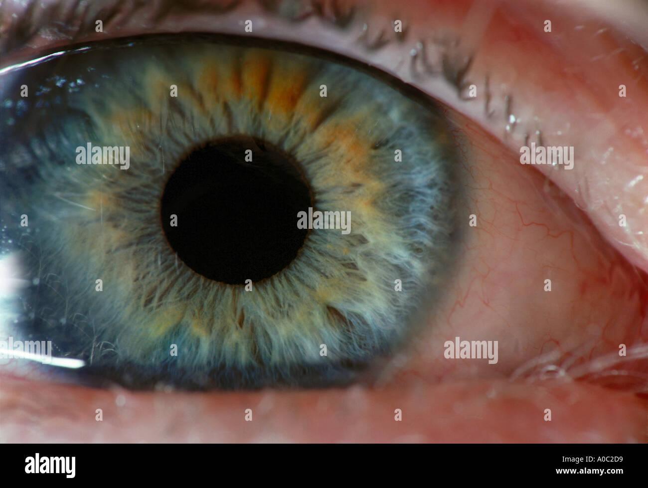 Ojos Ojos azules de la conjuntiva palpebral Pupila Iris pestañas ...