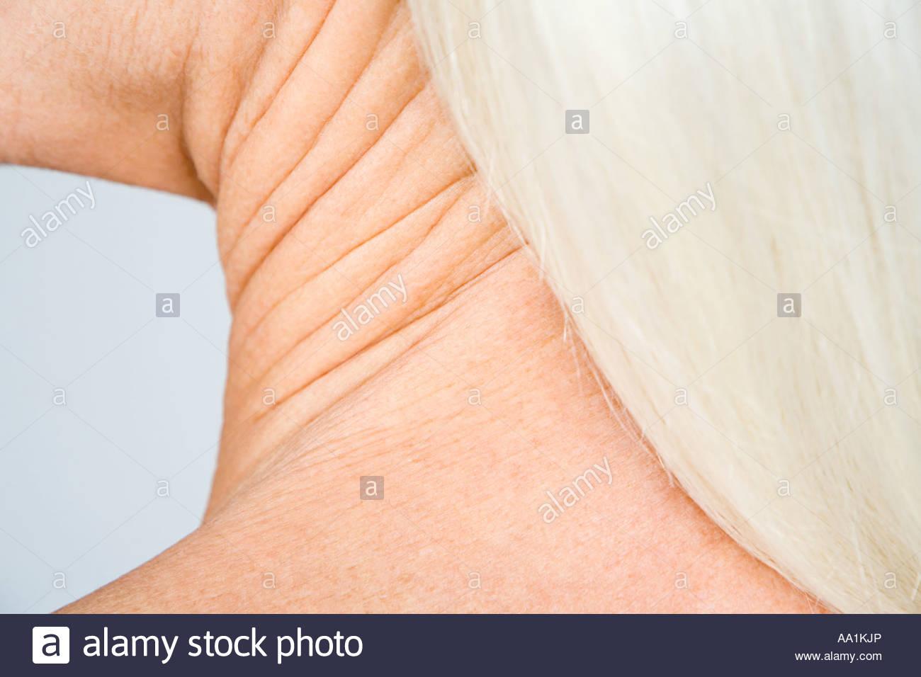 Human Neck Anatomy Imágenes De Stock & Human Neck Anatomy Fotos De ...