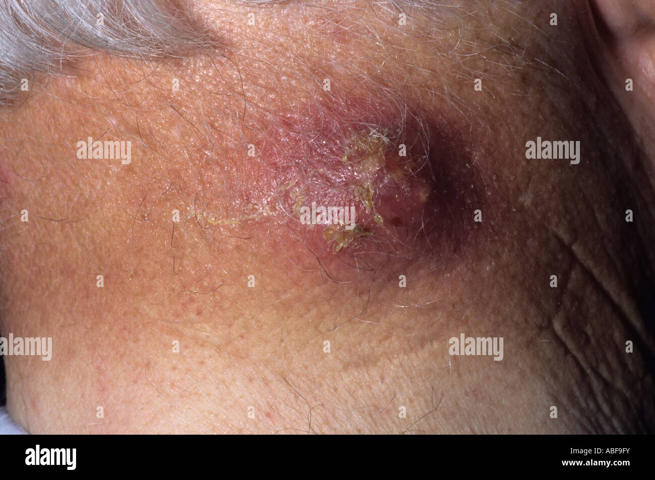 Sebaceous Cyst Imágenes De Stock & Sebaceous Cyst Fotos De Stock - Alamy