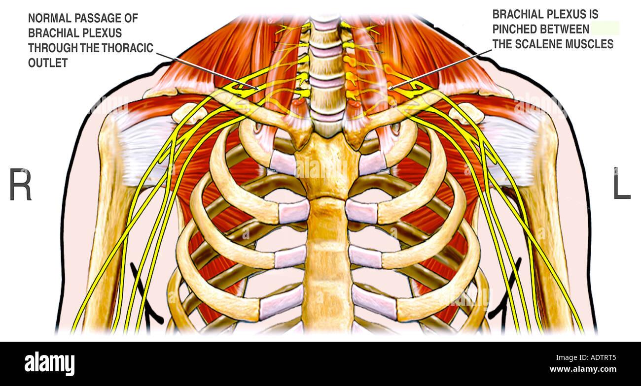 El síndrome de la salida torácica Foto & Imagen De Stock: 7710148 ...