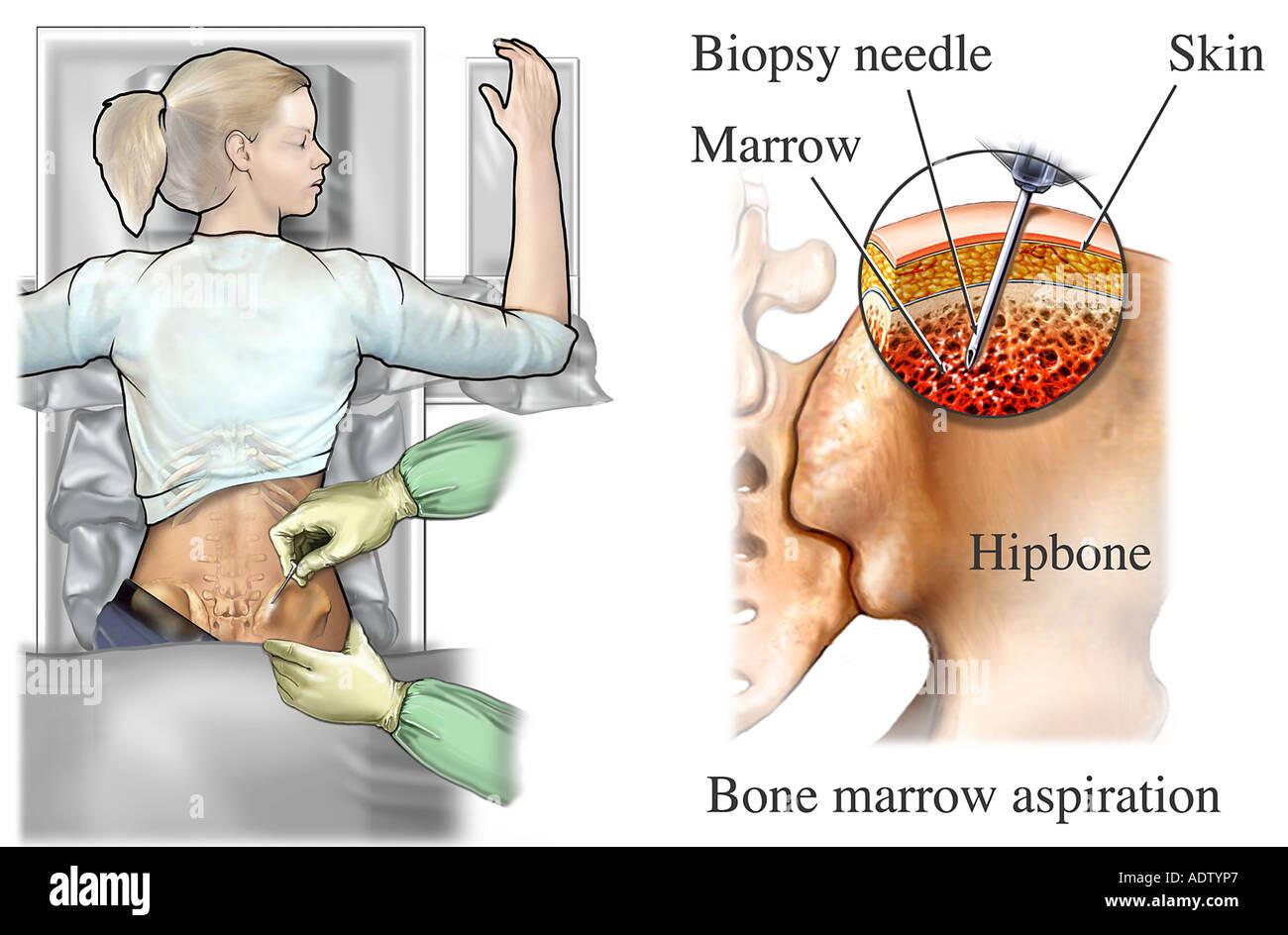 Aspiración de médula ósea Imagen De Stock
