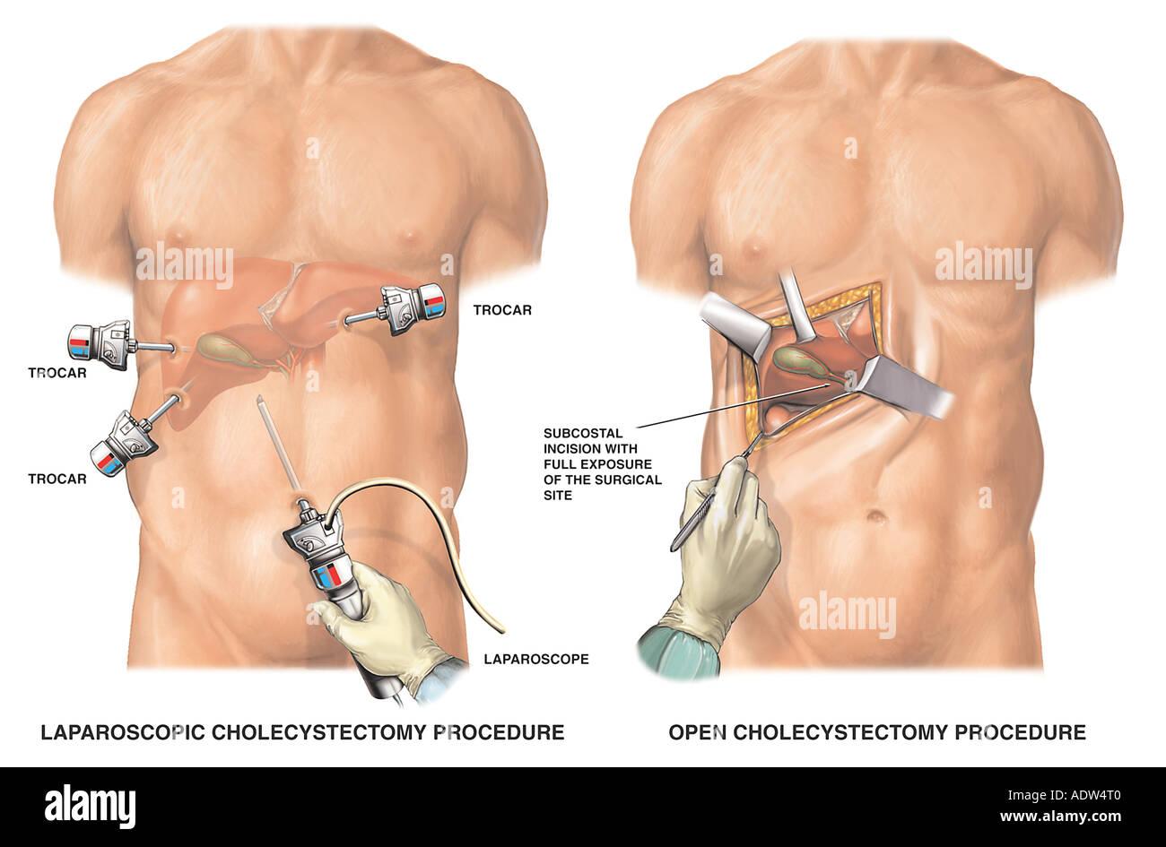Cholecystectomy Imágenes De Stock & Cholecystectomy Fotos De Stock ...