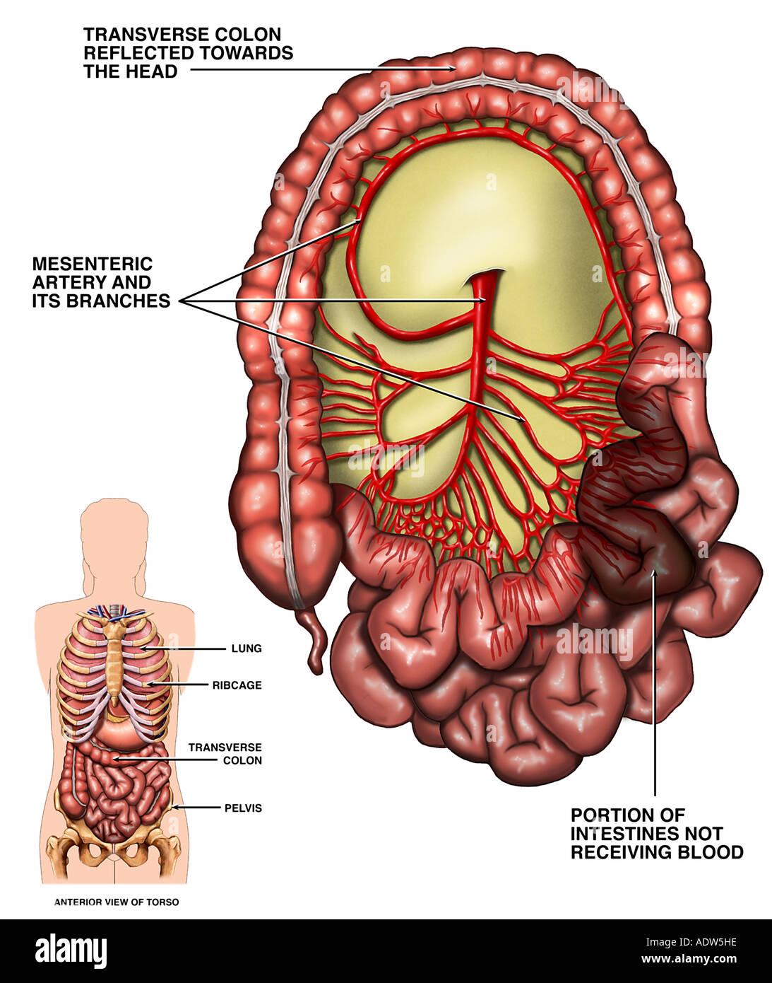 Superior Mesenteric Artery Imágenes De Stock & Superior Mesenteric ...