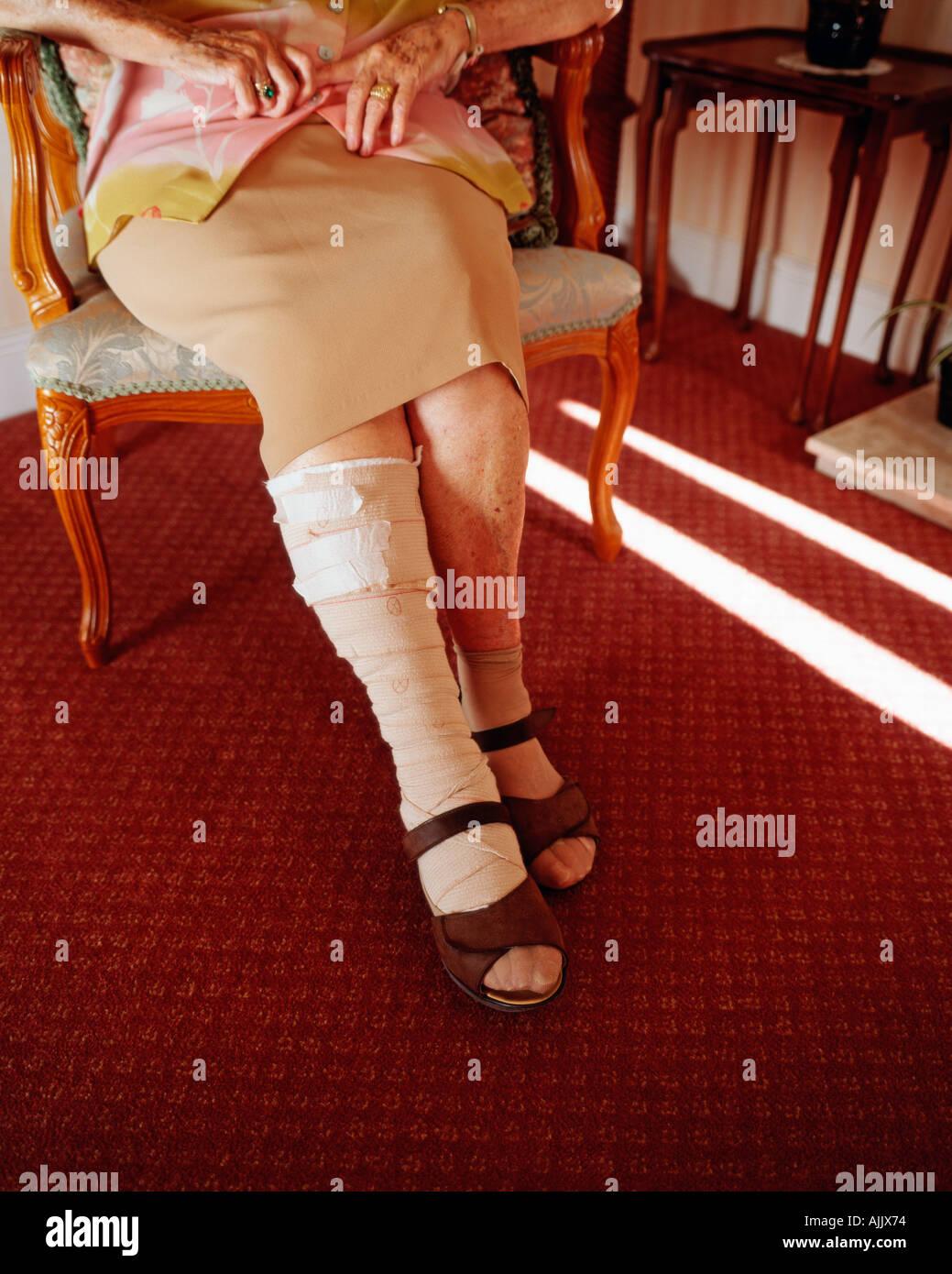 Anciana con la pierna vendada Foto de stock