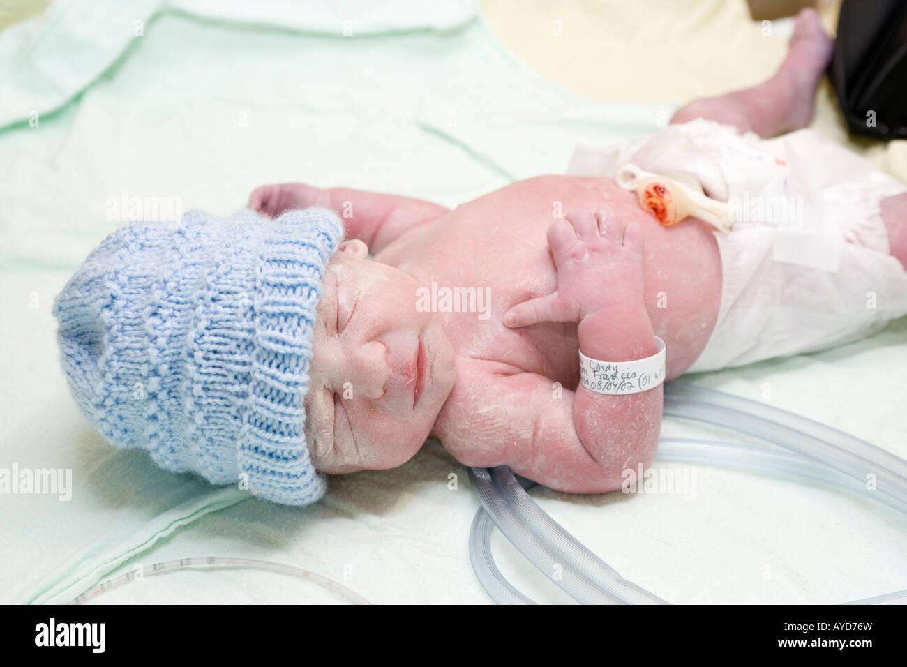Un bebé prematuro 5 semanas segundos después de nacer Foto de stock