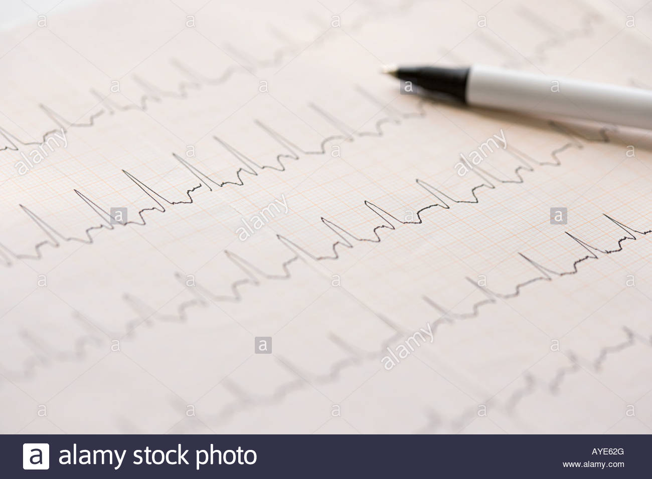 El electrocardiograma y la pluma Imagen De Stock