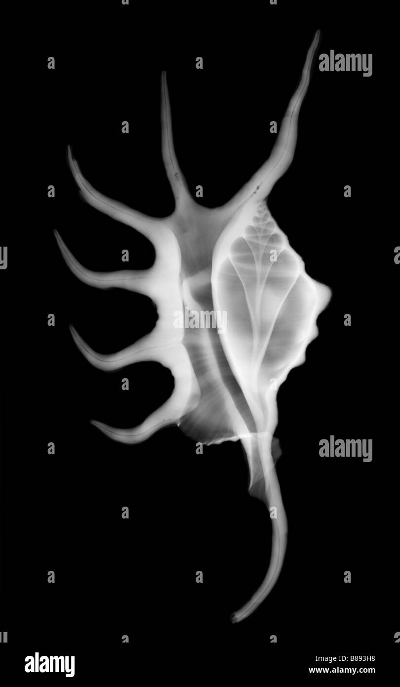 Radiografía de una araña Conch Lambis sp shell Imagen De Stock
