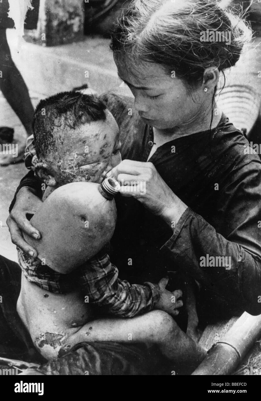 Guerra de Vietnam del Sur Che leva mal quemados bebé vietnamitas capturados en el estallido de bombas de napalm Imagen De Stock