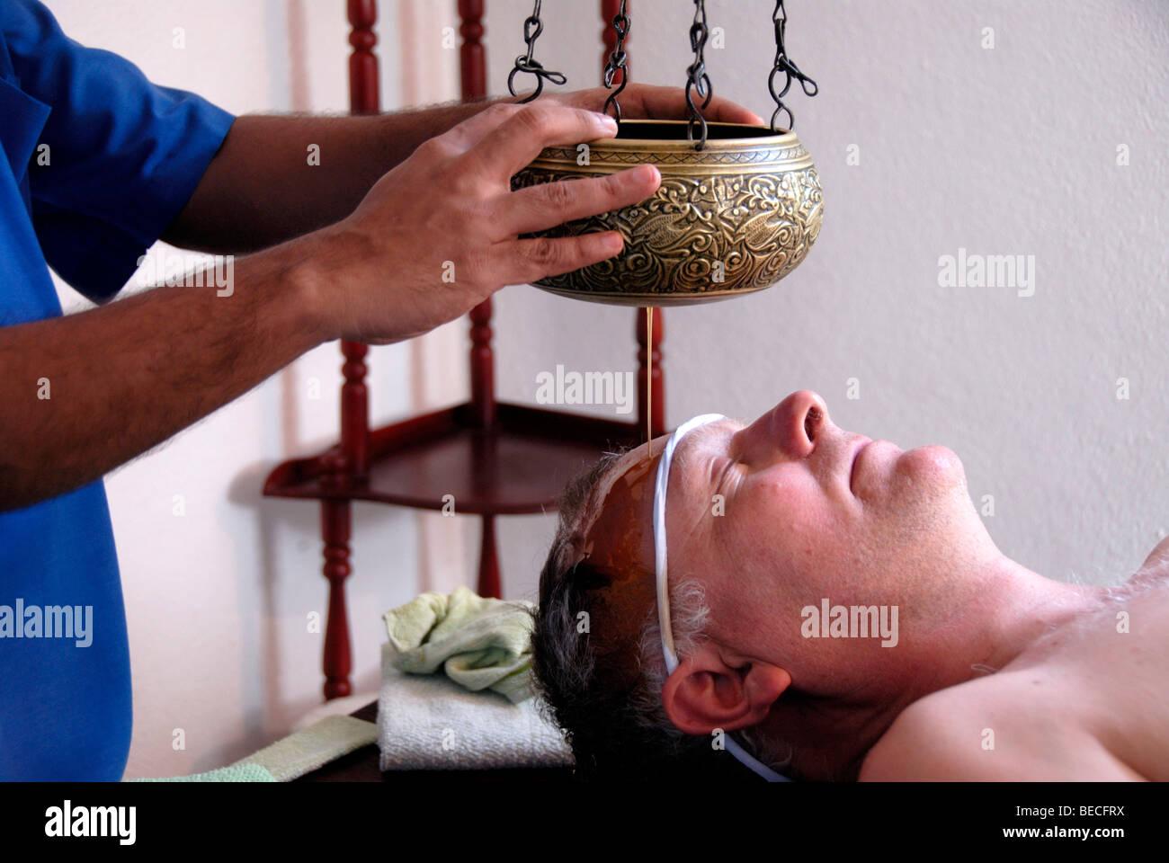 El Panchakarma, Shirodhara, caliente el aceite a través de la frente de un hombre, el Surya Lanka Beach Resort Spa Ayurveda, Talalla, Ceilán, S Foto de stock