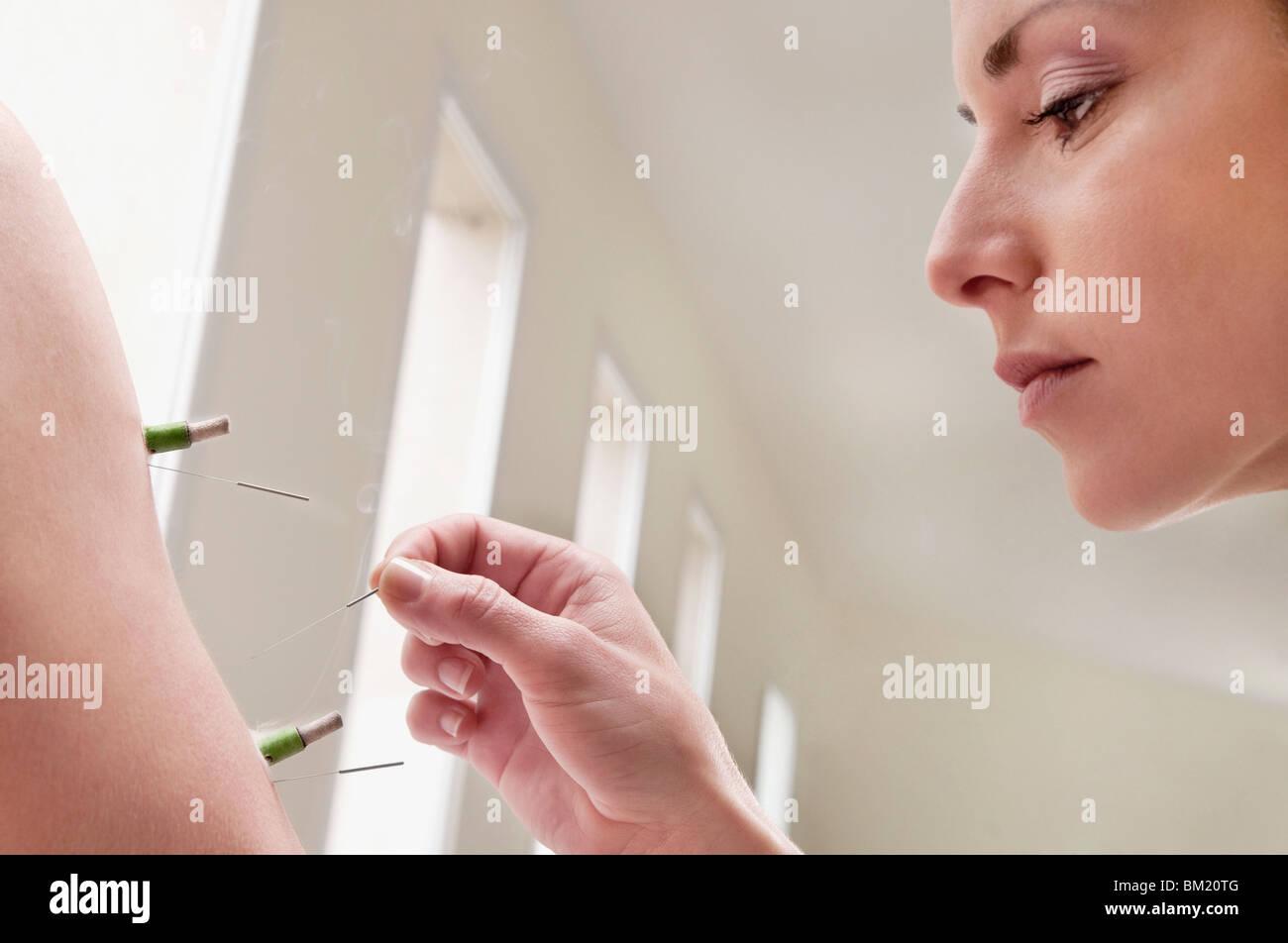 Acupuntor aplicando agujas y cigarros de hierbas en una persona del brazo Foto de stock