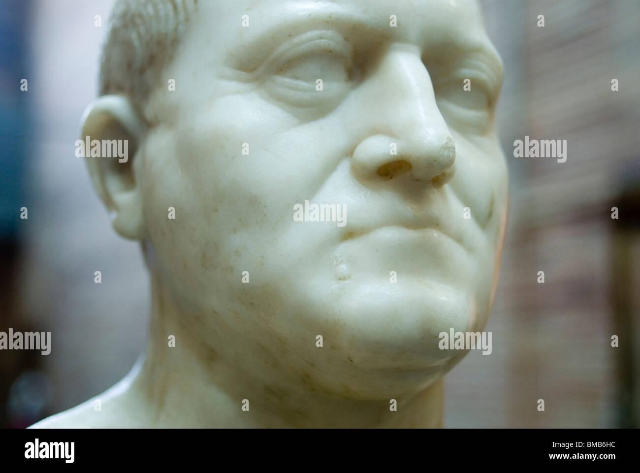 Retrato de un hombre con la verruga. Ist C. AD. Museo Nacional de Arte Romano de Mérida. Extremadura. España. Imagen De Stock