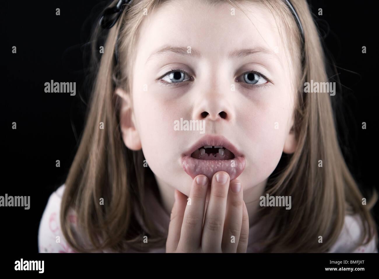 Foto de un malestar del niño con deficiencias en sus dientes Foto de stock