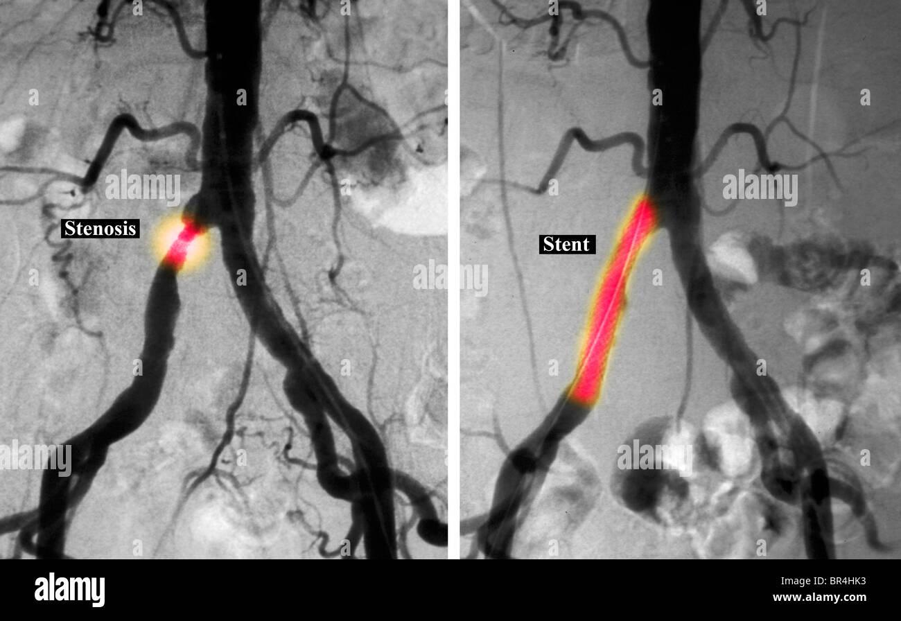 Common Iliac Artery Imágenes De Stock & Common Iliac Artery Fotos De ...