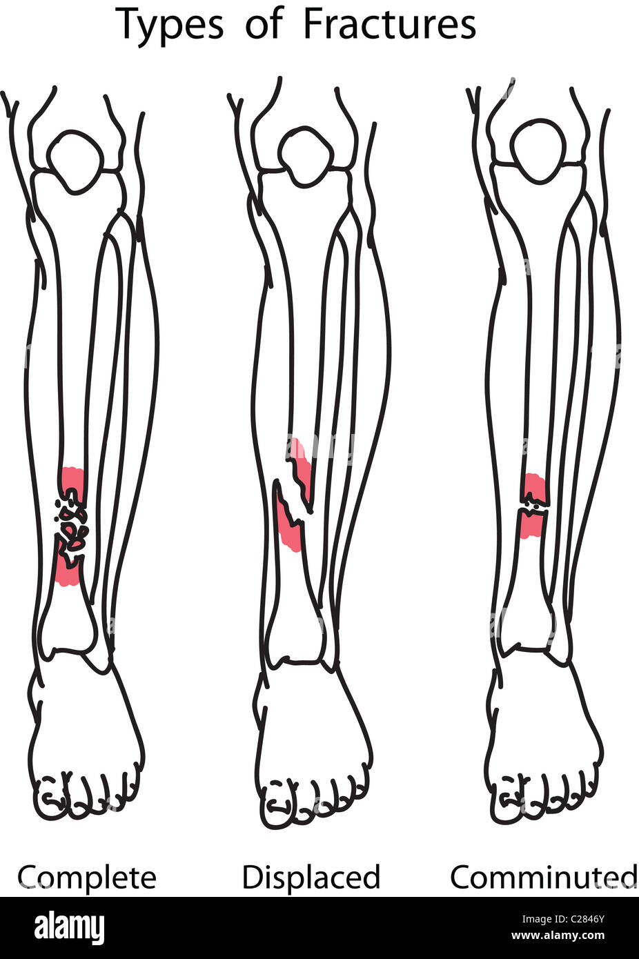 Tipos de fracturas de huesos humanos ilustración Foto & Imagen De ...