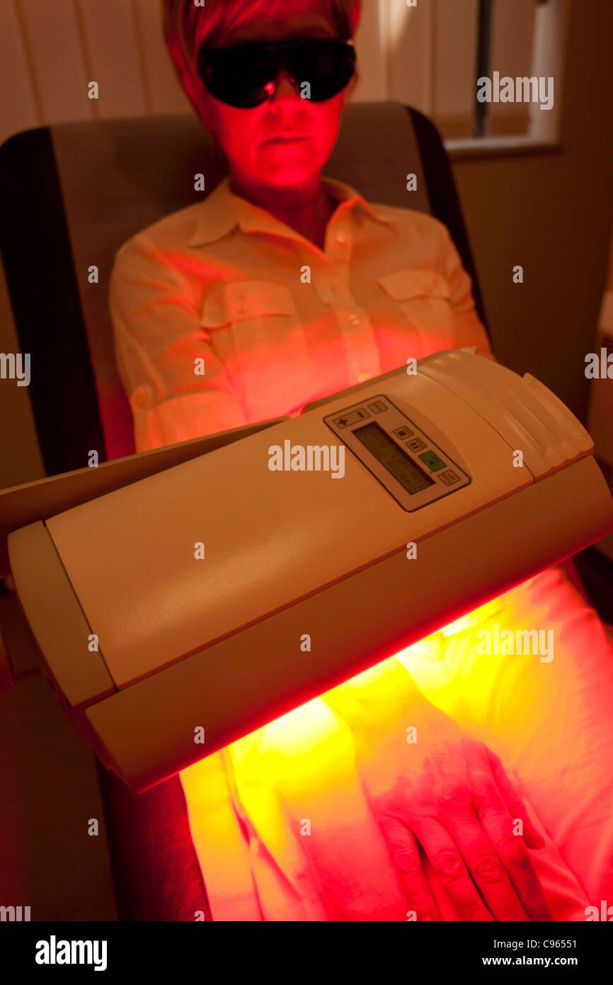La terapia fotodinámica. Paciente sometido a terapia fotodinámica. Imagen De Stock