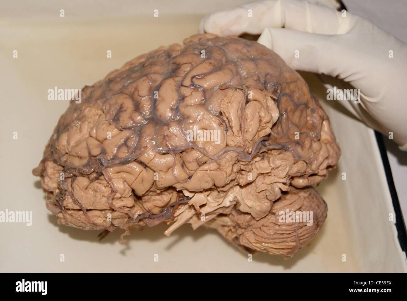 Cerebro Humano original examinando con la mano (con guantes) por los médicos. Imagen De Stock