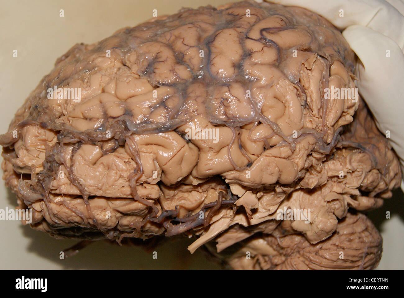 Cerebro Humano original espécimen capturado fuera en un vaso y la mano del médico con guantes en el bastidor. Imagen De Stock