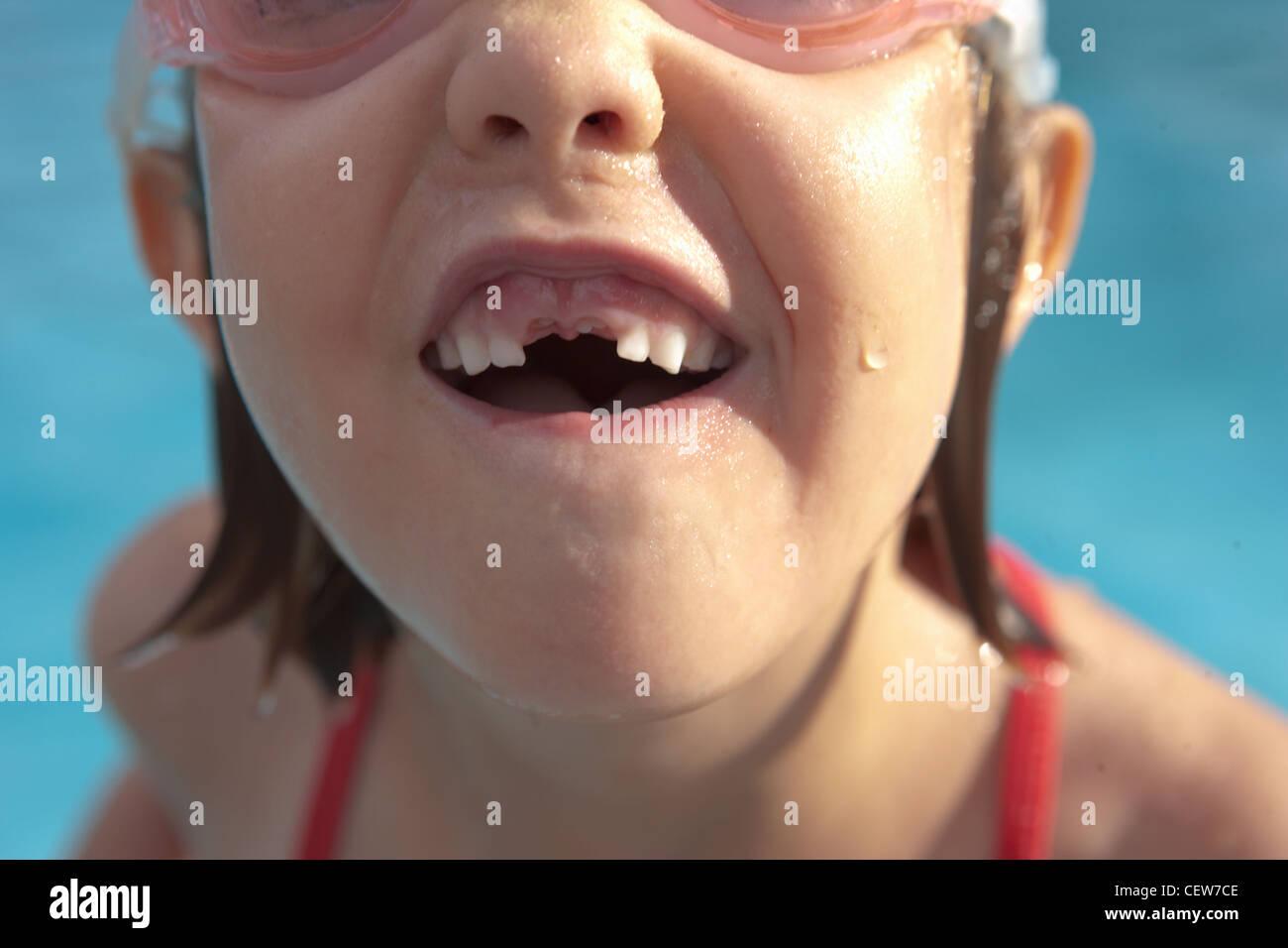 Primer plano de una niña con su falta de dientes frontales Foto de stock