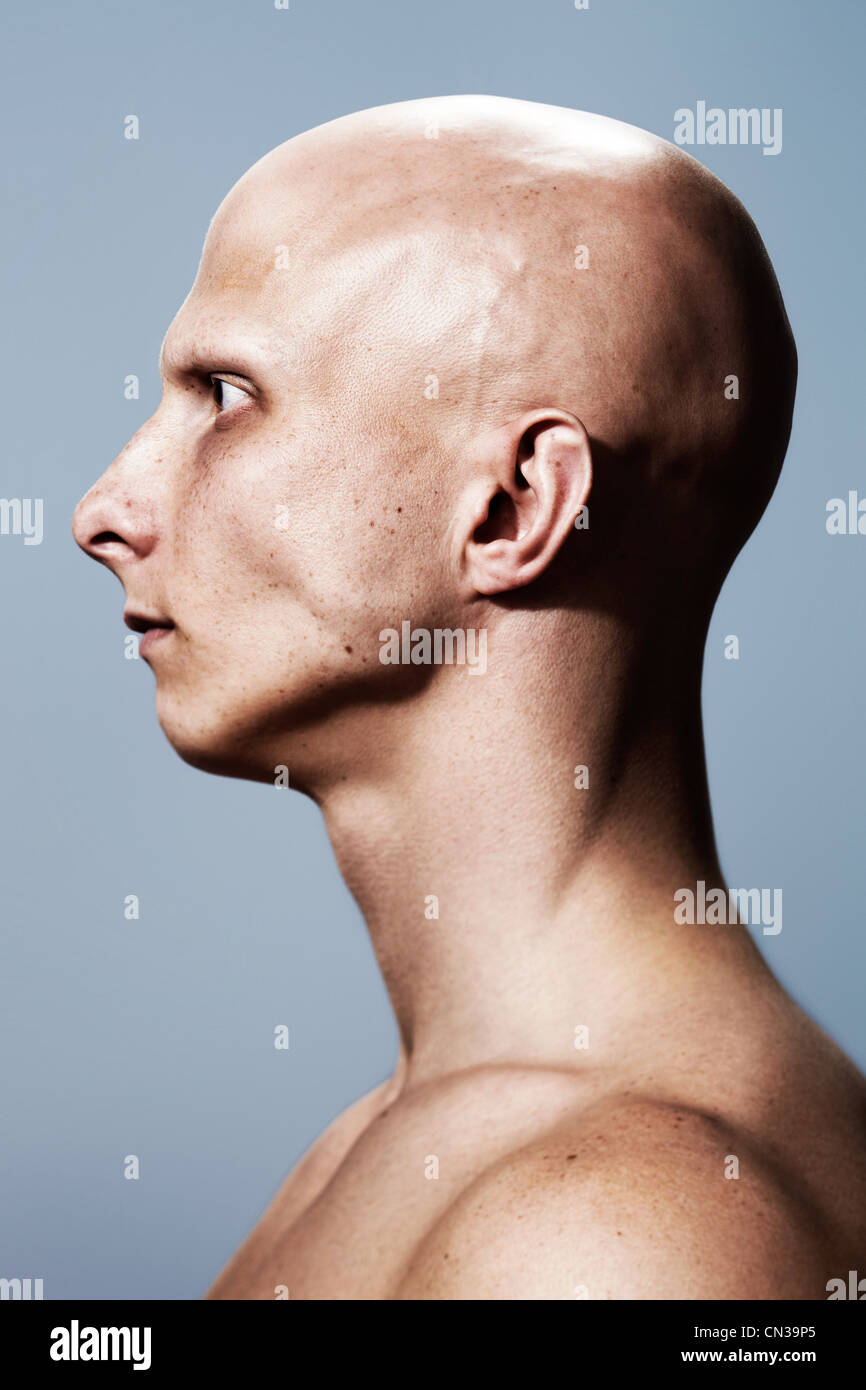 Vista lateral del hombre con la cabeza rapada Foto de stock