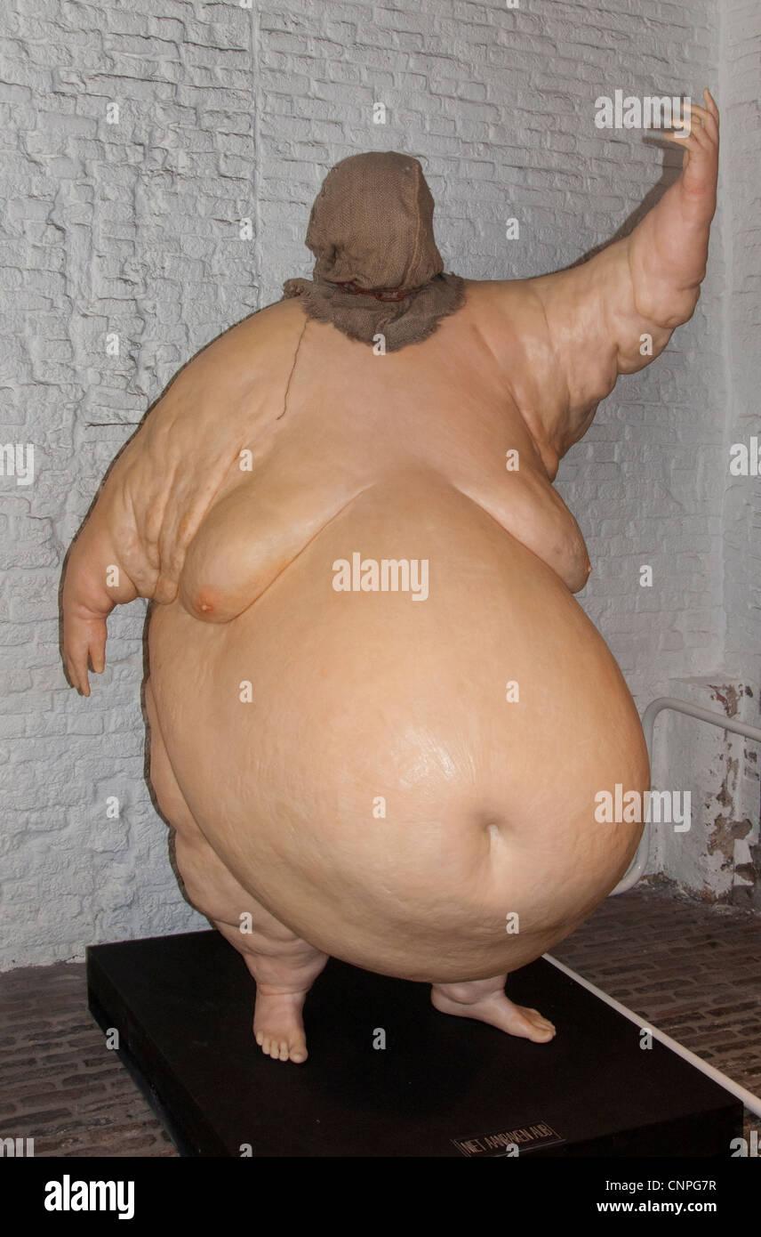 John Isaacs Inglés británico si no ahora, cuando la anorexia nerviosa obesidad trastornos alimentarios Imagen De Stock