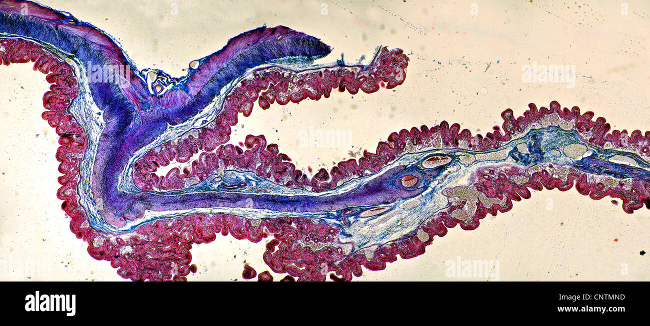 Personas, seres humanos, seres humanos (Homo sapiens sapiens), la sección transversal del intestino grueso Foto de stock