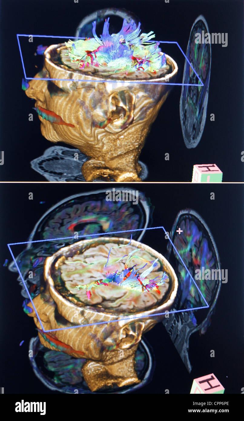 CEREBRO, MRI Imagen De Stock