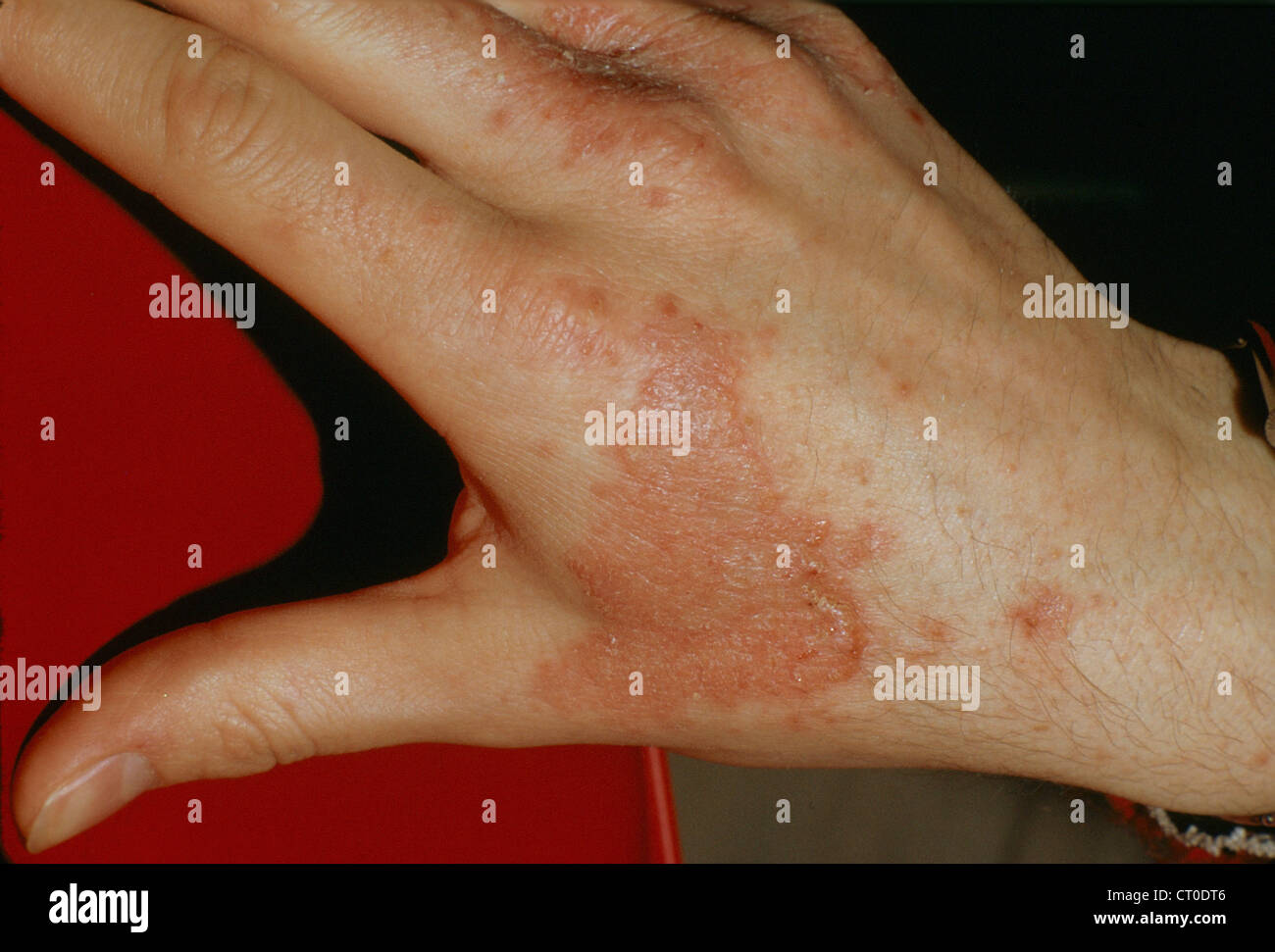 Reventar ampolla herpes dating