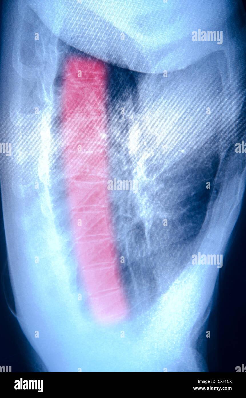 X-ray de músculo humano Imagen De Stock