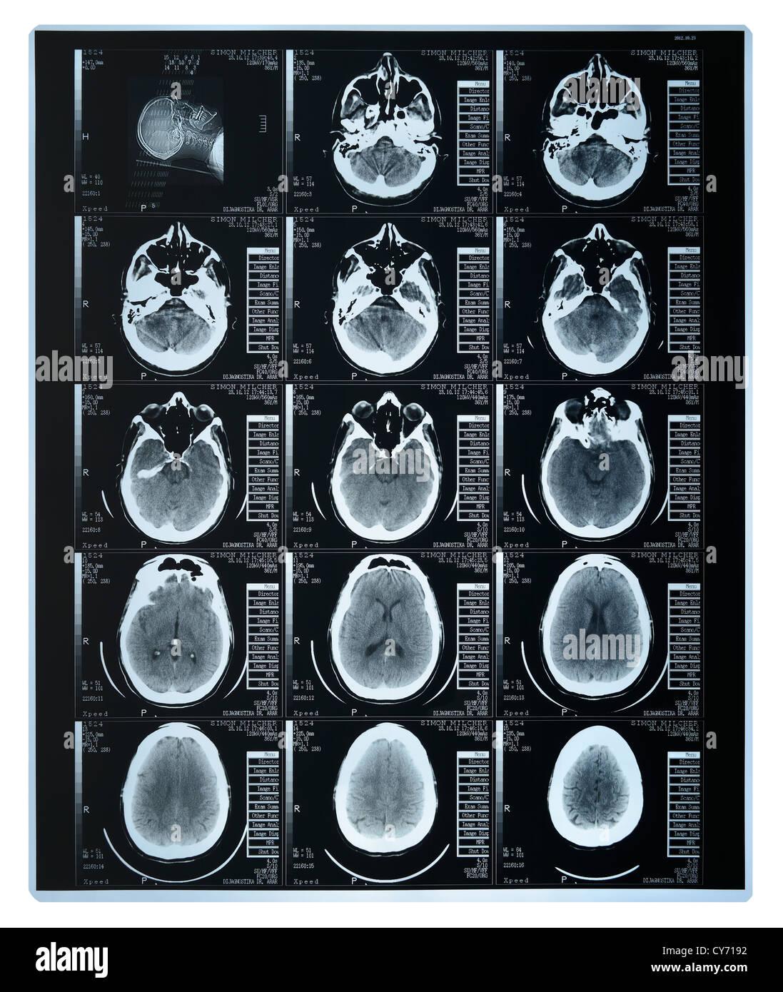 Tac de cerebro Imagen De Stock