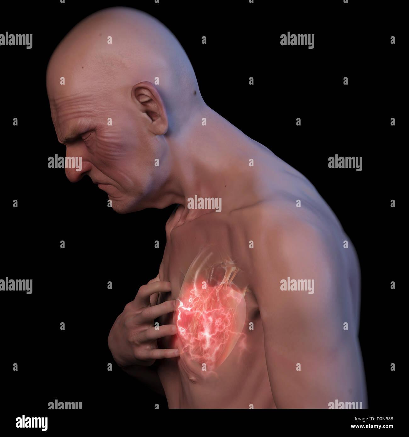 Un varón anciano agarrando su pecho durante un ataque al corazón. La ...