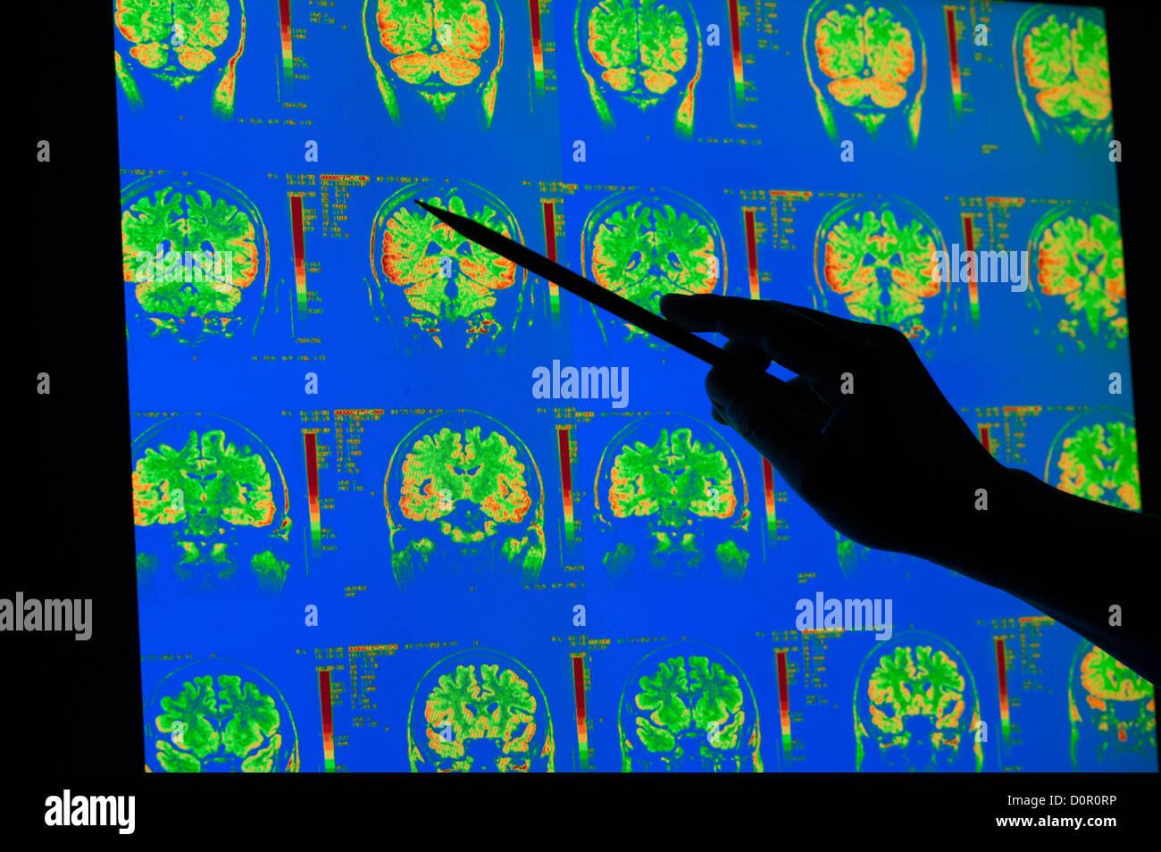 Los rayos x de color de la corteza cerebral, cerebelo IRM del cerebro humano Foto de stock
