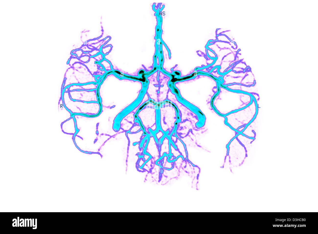Circle Of Willis Imágenes De Stock & Circle Of Willis Fotos De Stock ...
