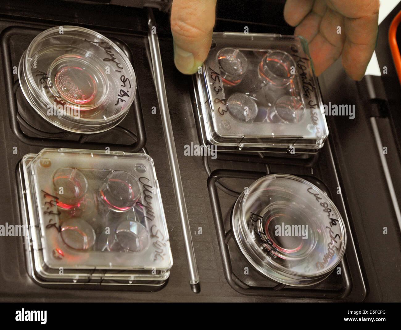 """Placas de Petri con cultivos celulares de embriones son destacados en el """"Centro para el deseo de tener hijos"""" en Leipzig, Alemania, el 30 de enero de 2013. Foto: Waltraud Grubitzsch Foto de stock"""