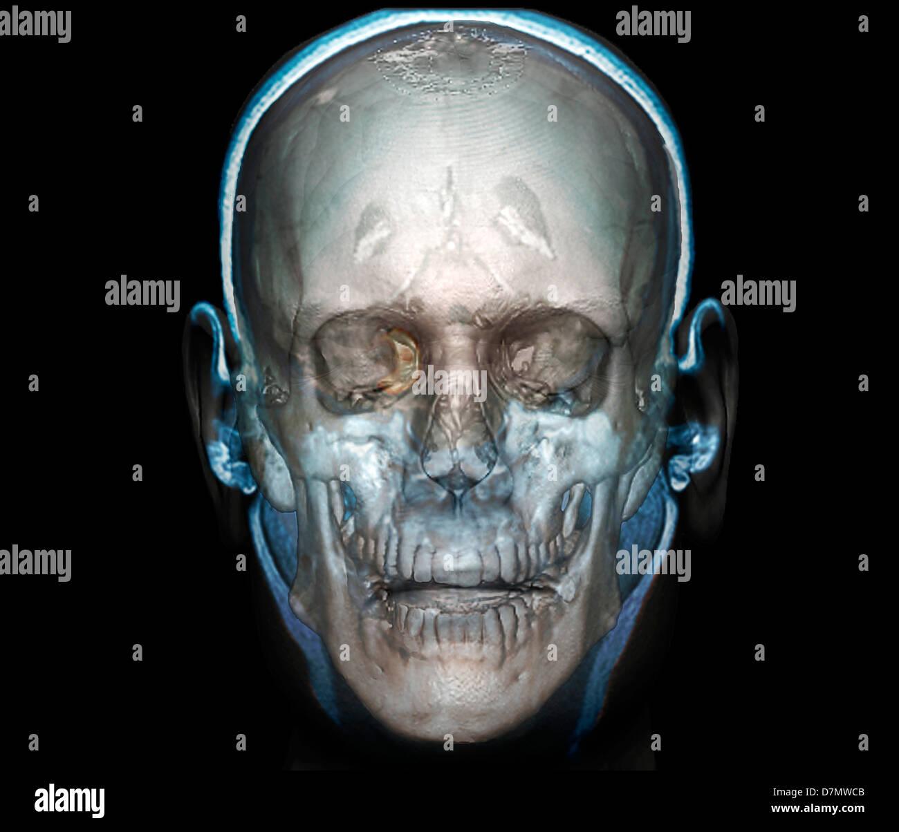 Cabeza humana, TC 3D Imagen De Stock