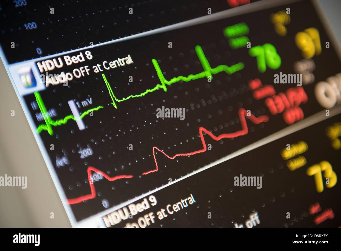 Un hospital moderno. Un monitor de la unidad de alta dependencia Imagen De Stock