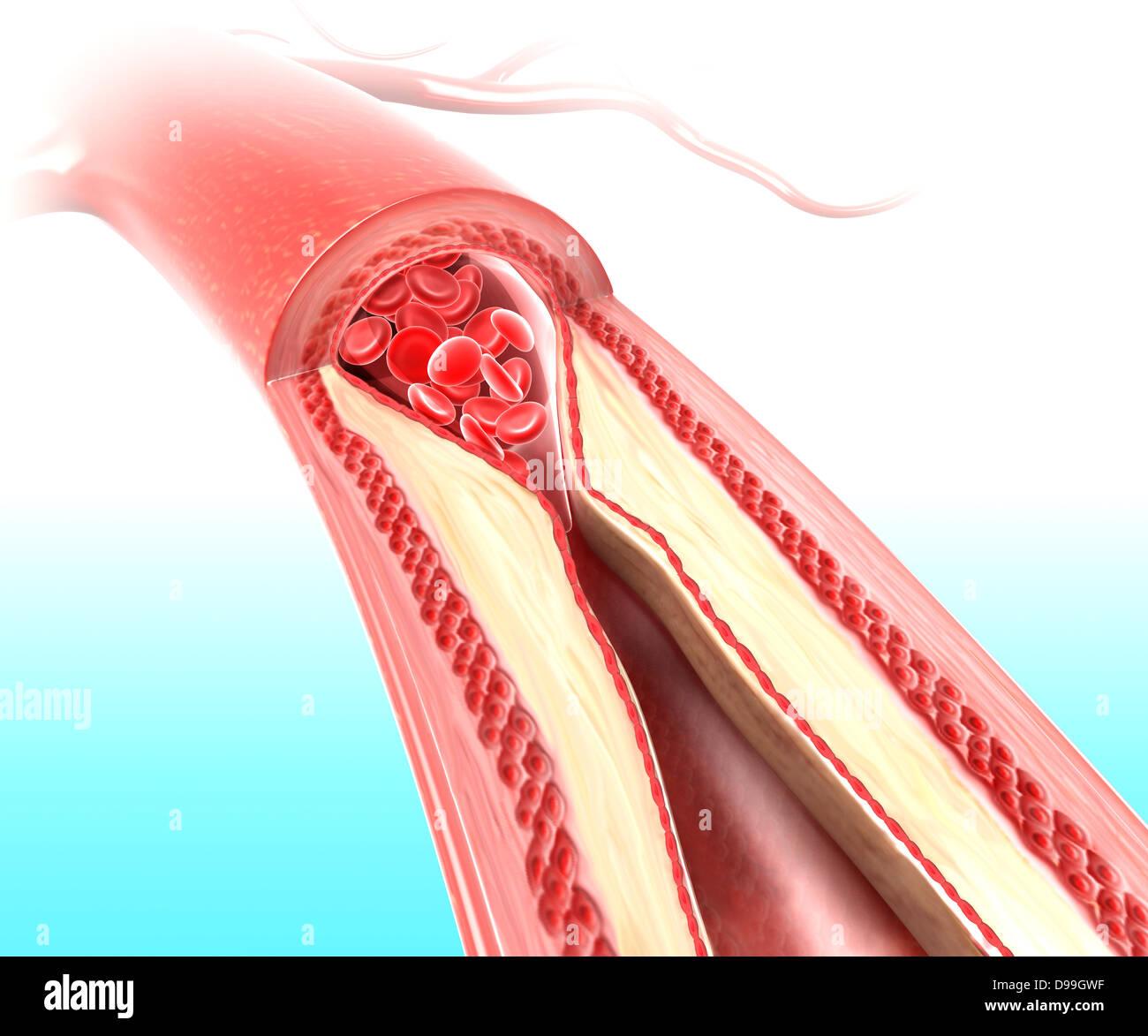 La aterosclerosis en la arteria debido a una placa de colesterol Foto de stock