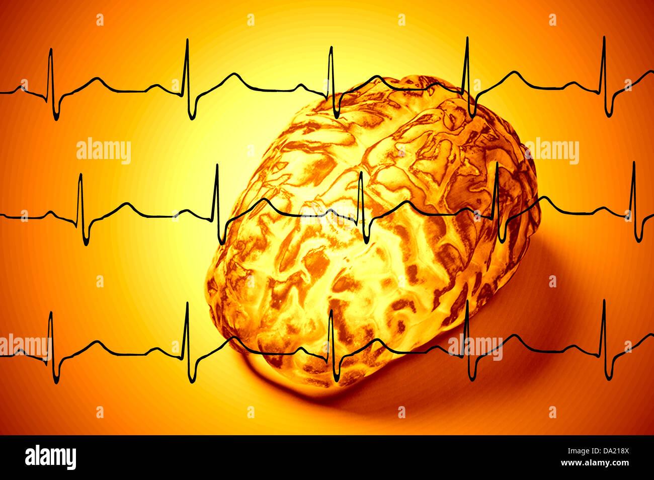 Cerebro generado por ordenador en concepto de fondo EKG Imagen De Stock