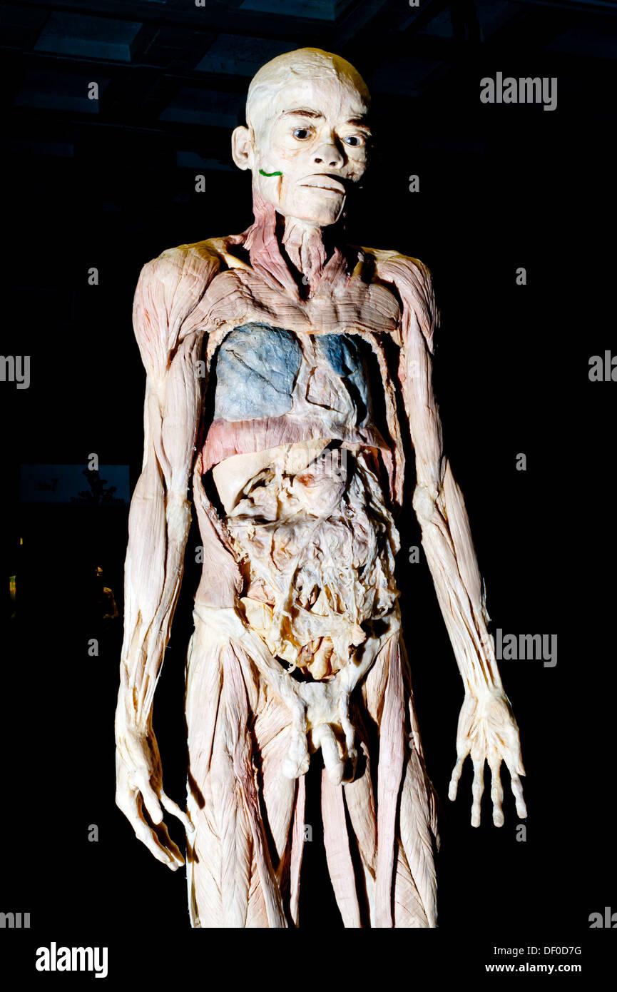 Plastinación espécimen de un cuerpo humano sin piel Foto & Imagen De ...