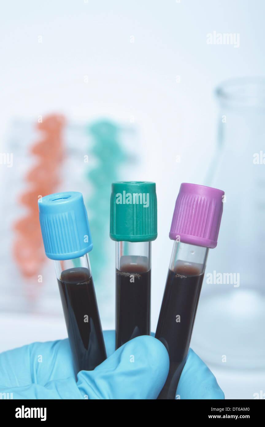Color tubos de sangre que contienen muestras de sangre sintética. Blue top - buffer citrato de sodio. Parte superior verde - heparina de litio. Imagen De Stock
