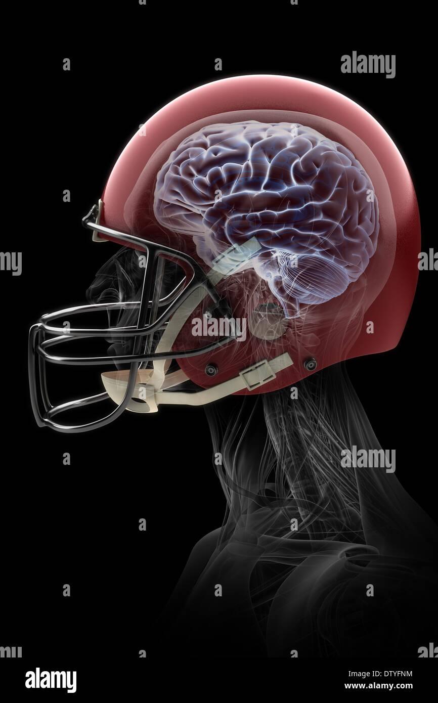 Lesión cerebral Imagen De Stock