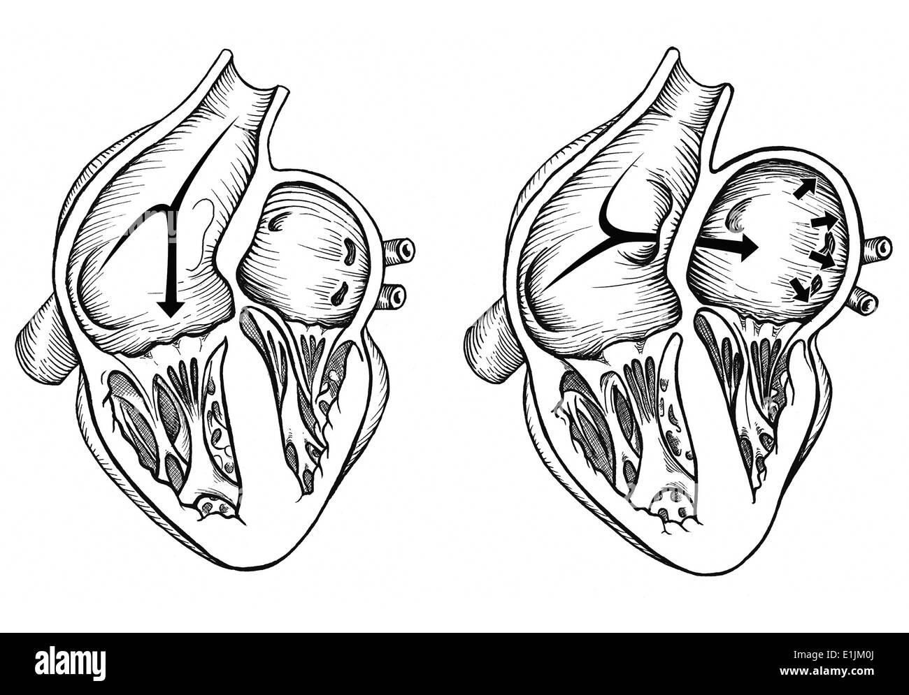 Comparación de corazón normal versus el corazón con un foramen oval permeable. Foto de stock