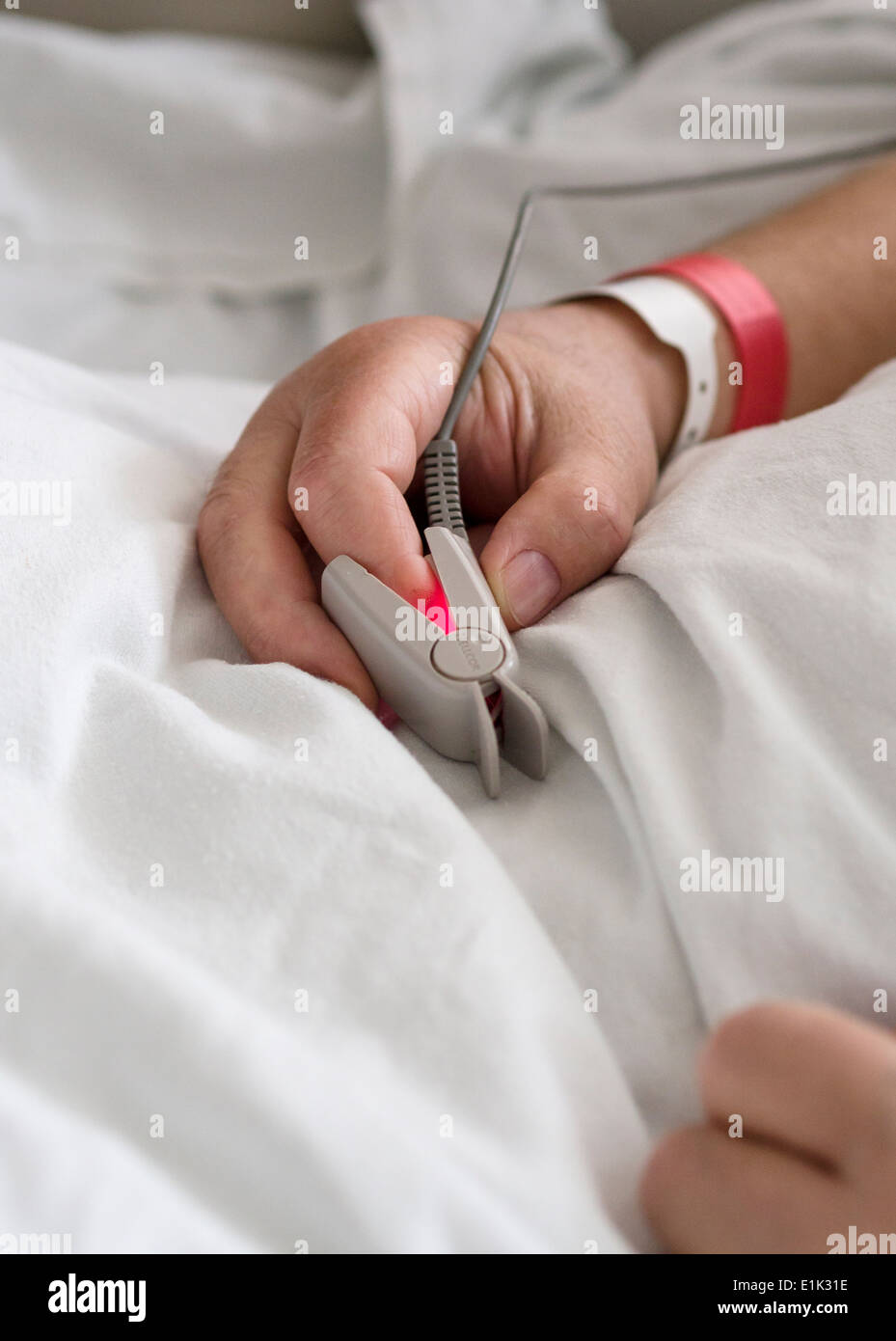 Un monitor de pulso y oxígeno en el dedo del paciente. Una marca nellcor oxígeno y monitor de pulso brilla en el dedo de un paciente. Imagen De Stock