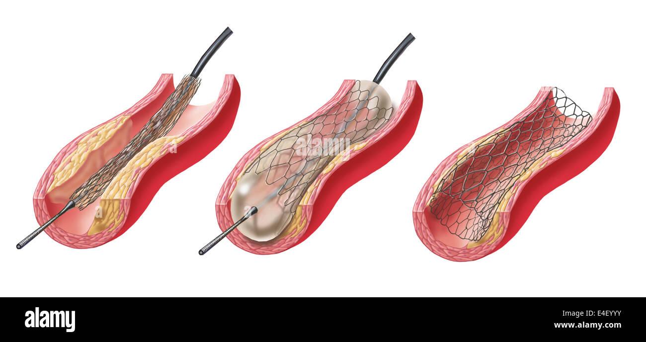 La inserción del stent en arteria aterosclerótica. Foto de stock
