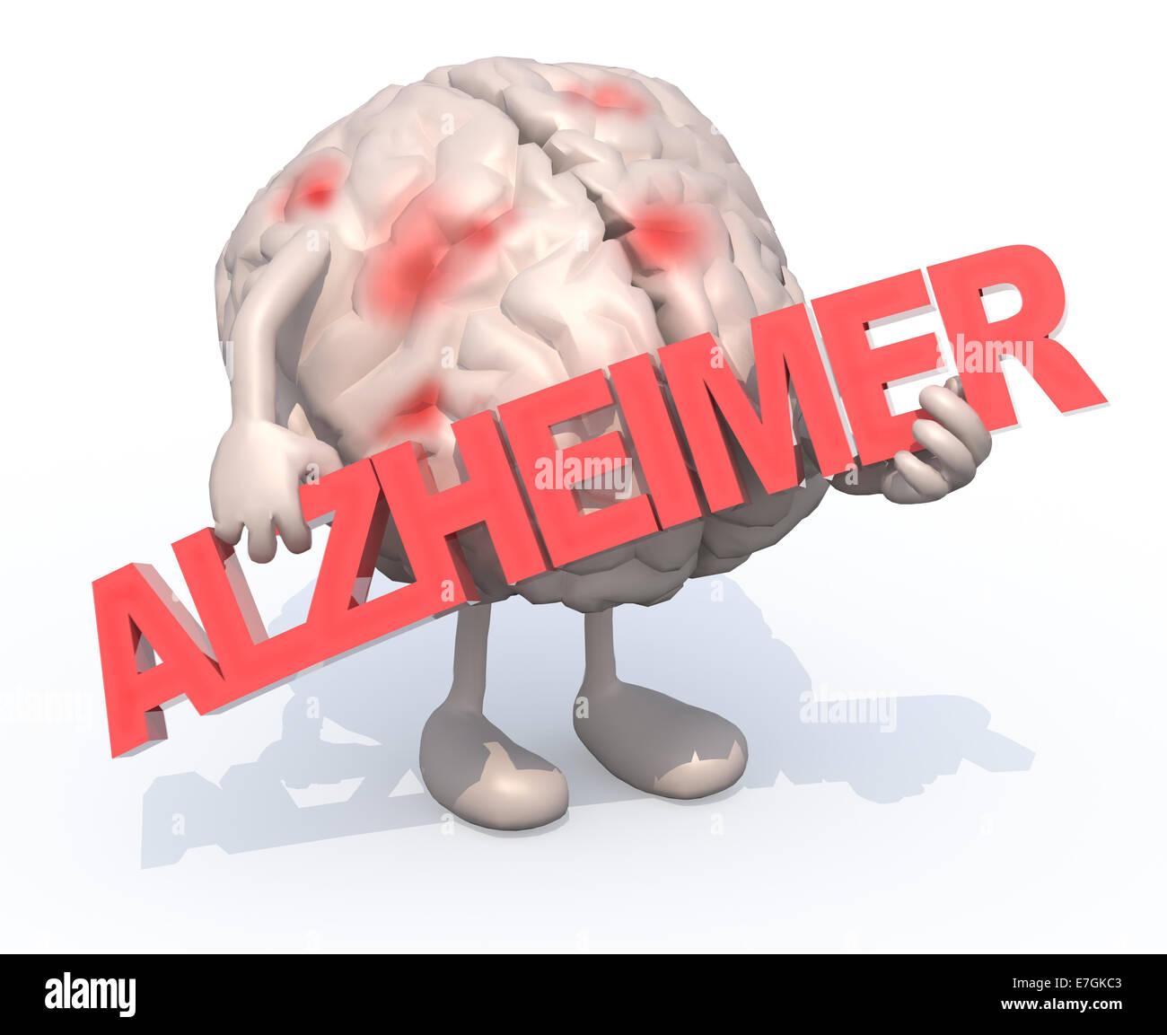 """Cerebro Humano con artes que abarca el término """"Alzheimer"""", la ilustración 3d Imagen De Stock"""