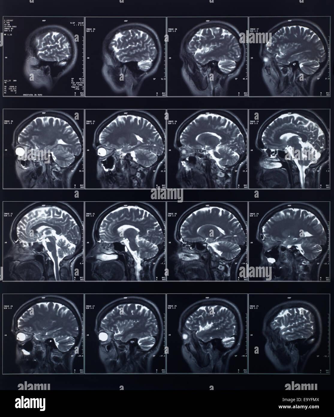 X-ray radiografía de cabeza y cerebro Imagen De Stock