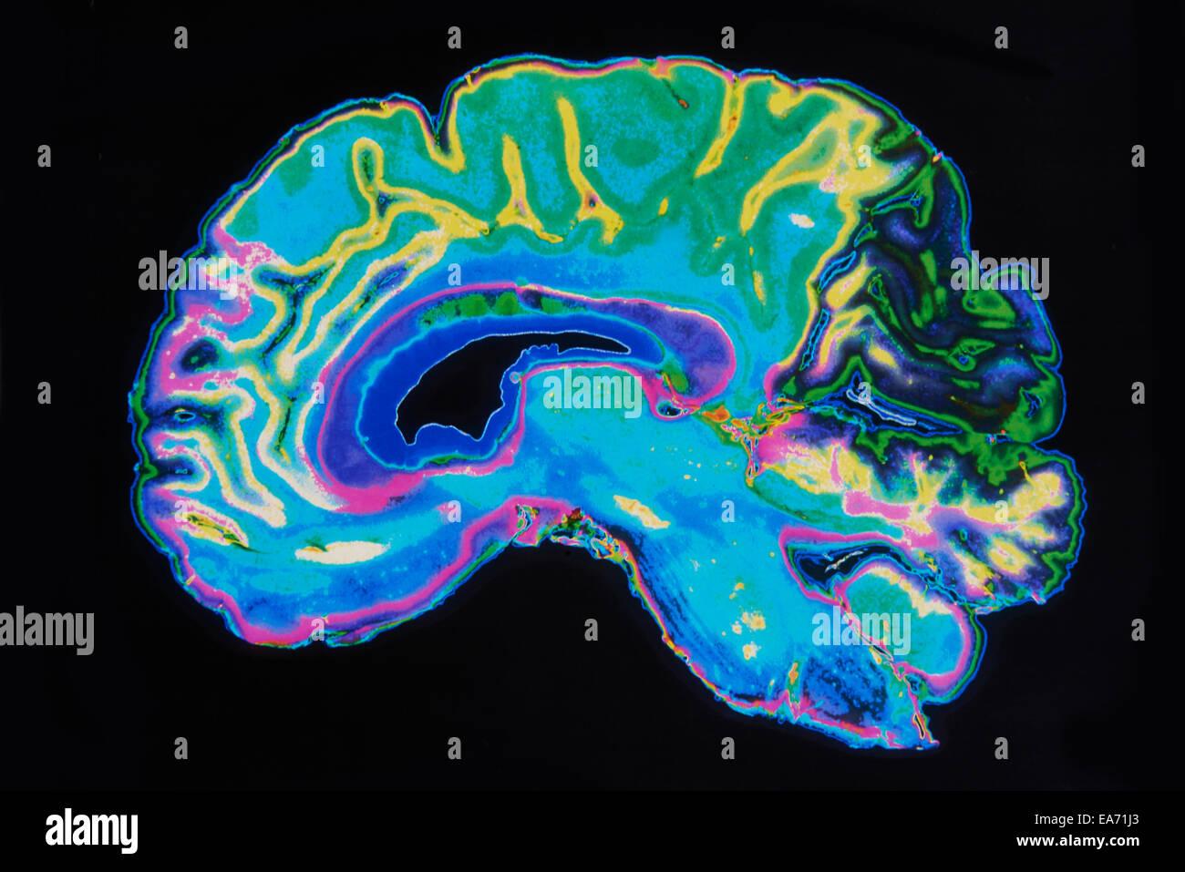 Imágenes de resonancia magnética del cerebro sobre fondo negro Imagen De Stock