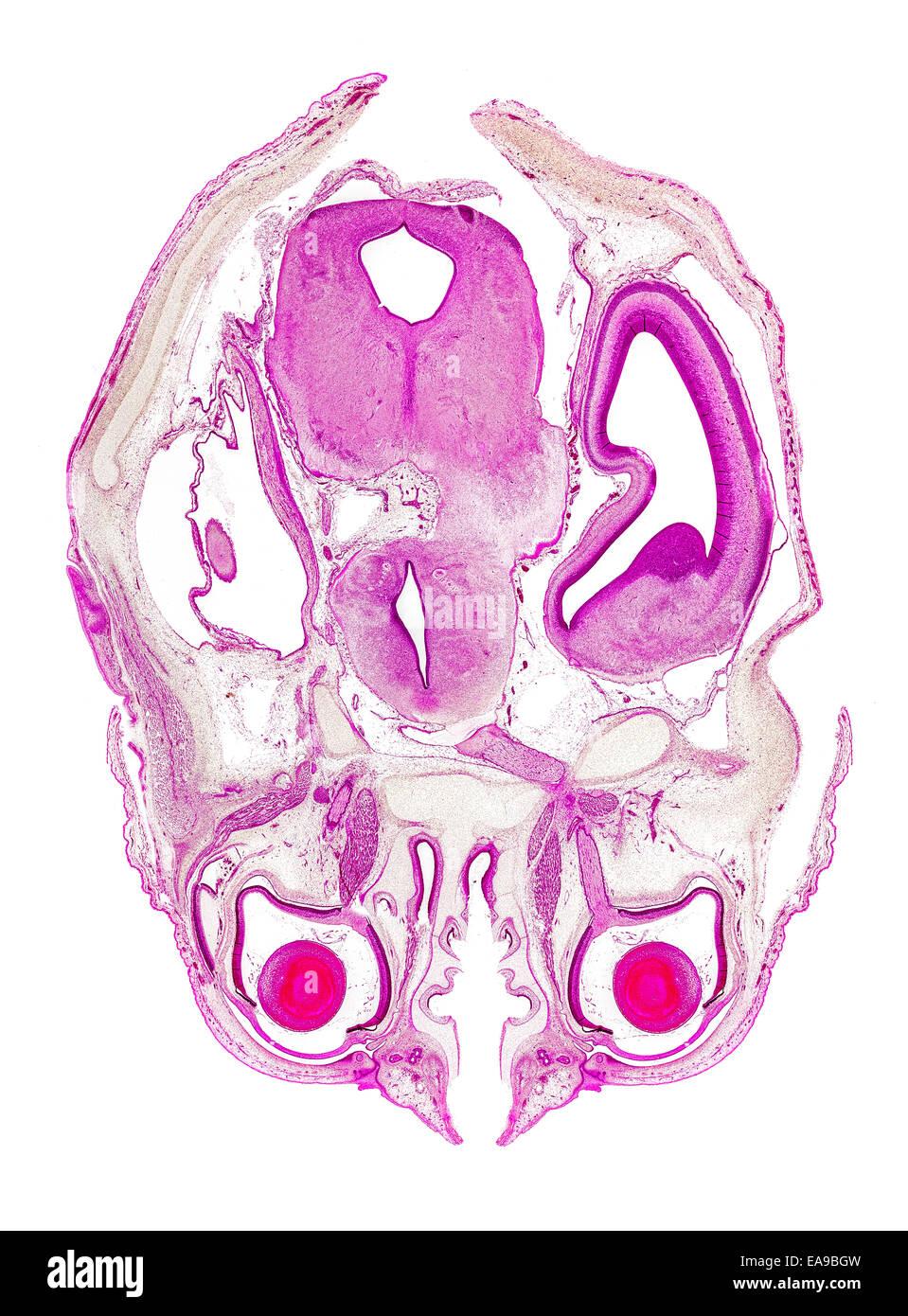 Feto humano sección manchada de cabeza mostrando estructura general Imagen De Stock