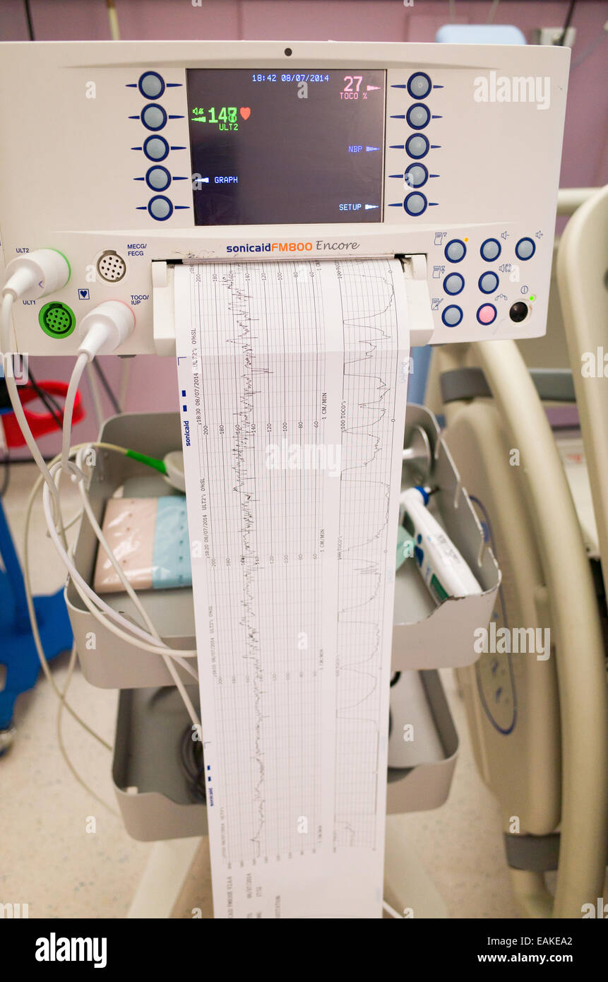 Monitor de latido del bebé dentro del útero antes de nacer en la unidad de maternidad, Inglaterra, Reino Imagen De Stock