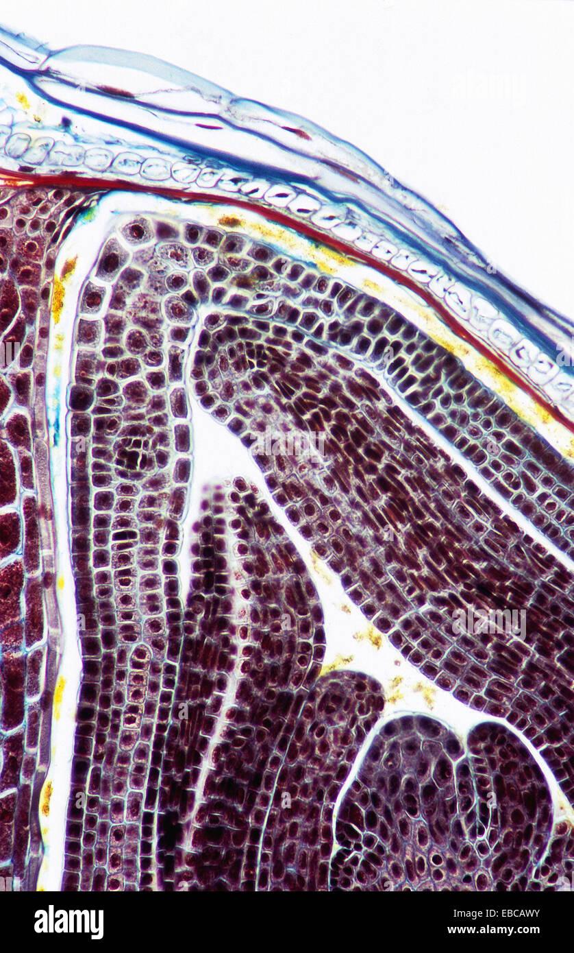 El trigo (Triticum aestivum) semilla. Tegumento, endospermo ...